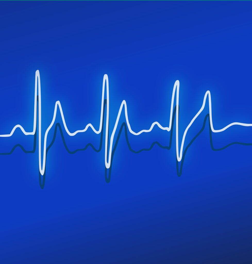 ekg, heartbeat, frequency